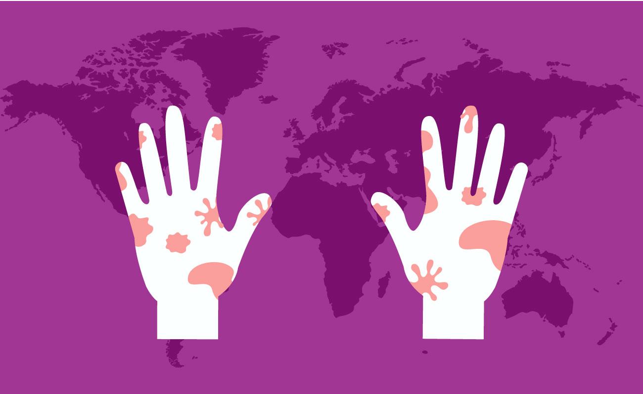 image for Día Mundial contra la Lepra