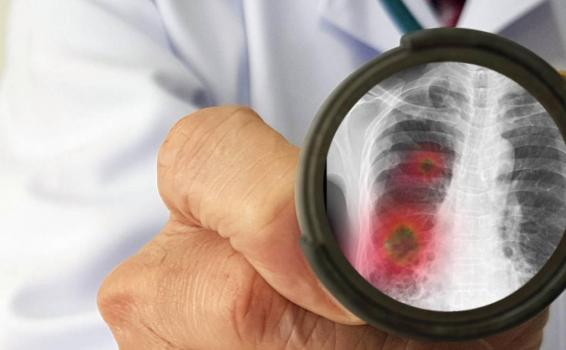 image for Coronavirus causante de la neumonía cobra ya 722 vidas en China