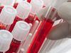 image for Governo do Amazonas libera recurso para ampliação dos serviços de hematologia